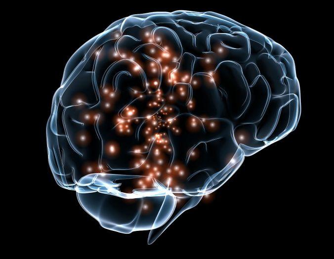 vm-cerebro